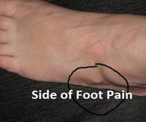 10 Problems That Causes Side Of Foot Pain Or Lateral Ankle Pain