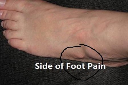 10 Causes For Side Of Foot Pain Or Lateral Ankle Pain