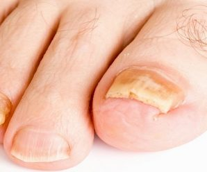 What Causes Yellow Toenail Fungus? How to Get Rid of It?